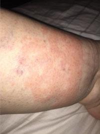 Lipdema rashes on the legs